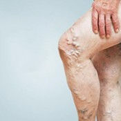 Varicose veins and hemorrhoids
